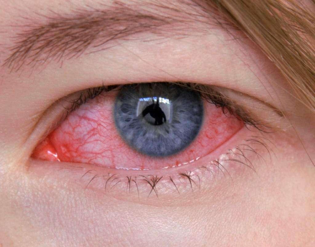 zakażone-oko-irydologia.jpg