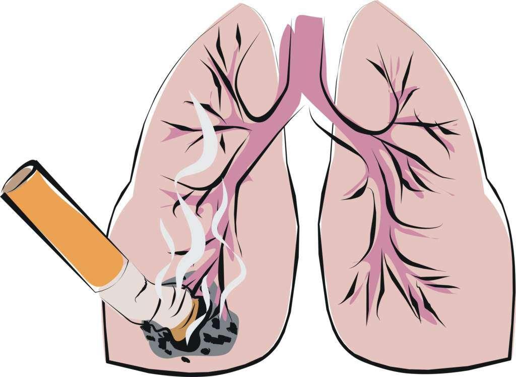rak-płuc.jpg