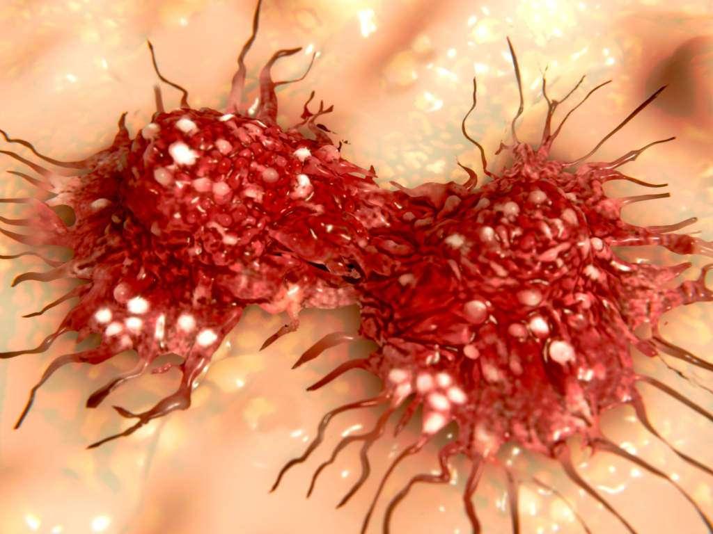 komórki rakowe-nowotworowe.jpg