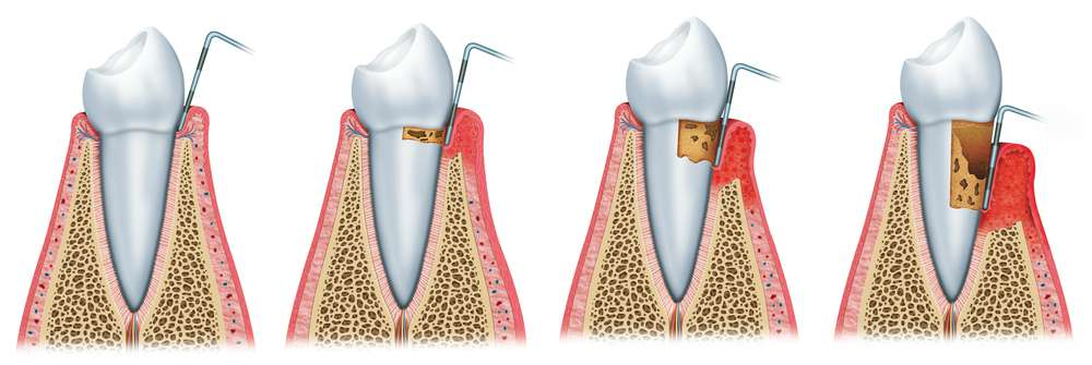 parodontoza-żyworódka-pierzasta.jpg