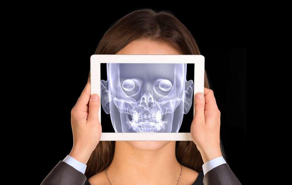implanty-obcych-rentgen.jpg