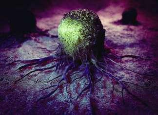 rak-nowotwór.jpg