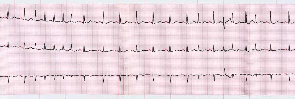 ekg-lukrecja-serce.jpg