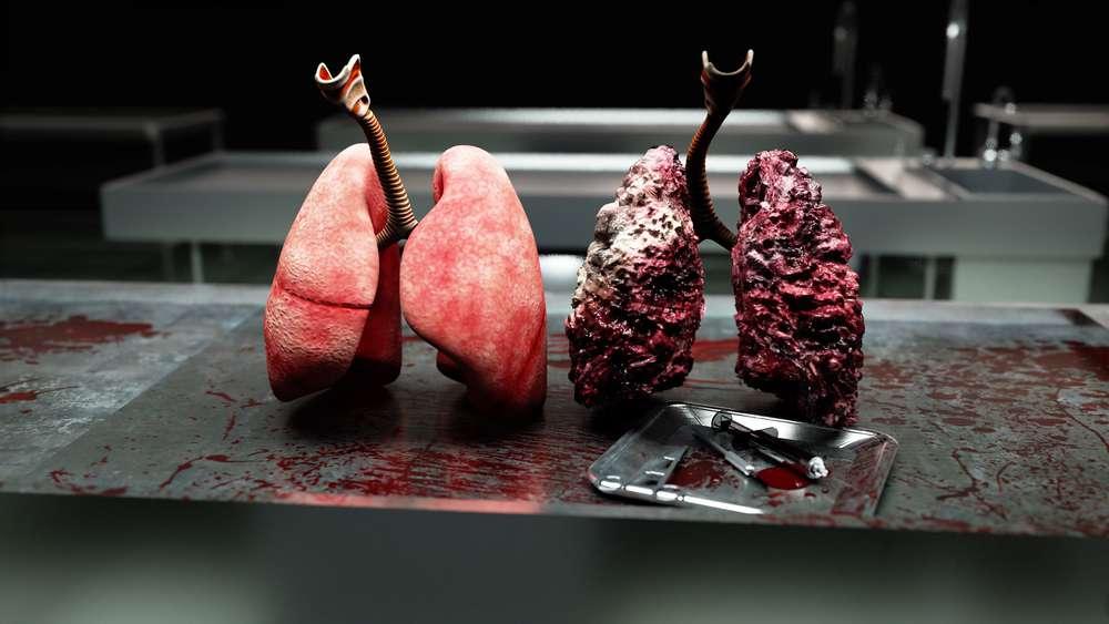 płuca.jpg