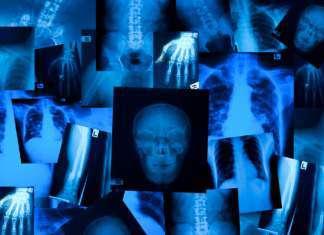 dziewczyna-rentgen-w-oczach.jpg