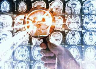 rak-mózgu.jpg