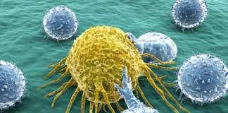 czynniki-raka.jpg