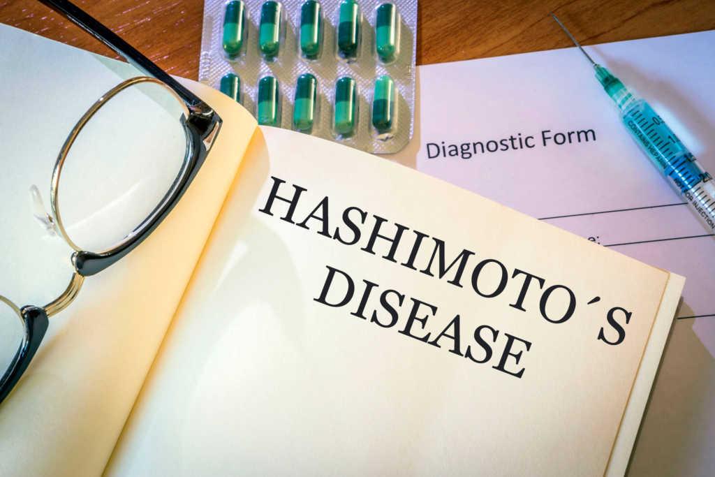 hashimoto-dieta.jpg