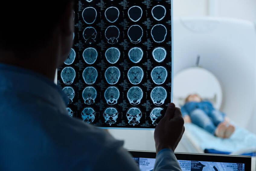 rak-mózgu-5g.jpg
