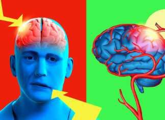 paraliż-twarzy.jpg